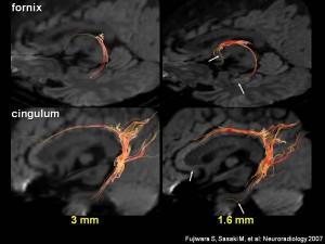先端脳機能診断学