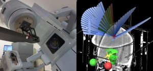 放射線腫瘍学科