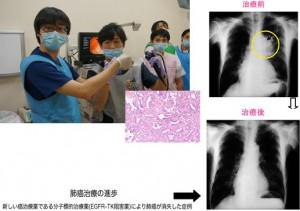 呼吸器アレルギー